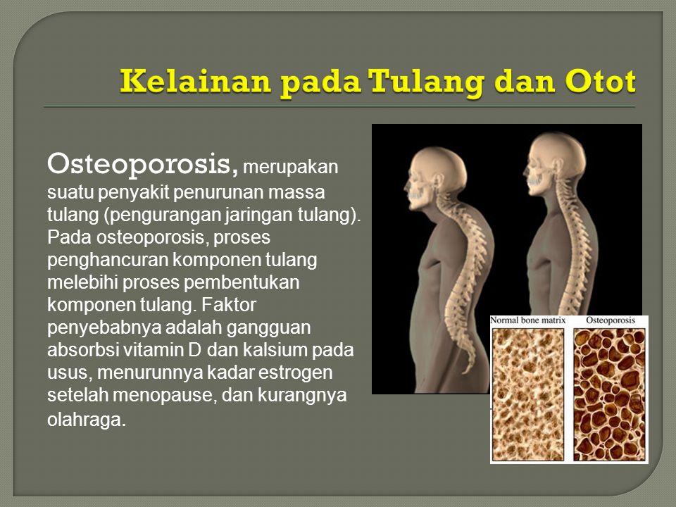 Osteoporosis, merupakan suatu penyakit penurunan massa tulang (pengurangan jaringan tulang). Pada osteoporosis, proses penghancuran komponen tulang me