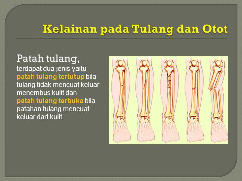 Patah tulang, terdapat dua jenis yaitu patah tulang tertutup bila tulang tidak mencuat keluar menembus kulit dan patah tulang terbuka bila patahan tul