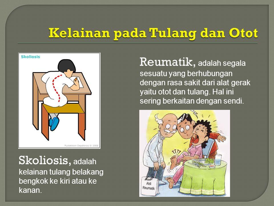 Skoliosis, adalah kelainan tulang belakang bengkok ke kiri atau ke kanan. Reumatik, adalah segala sesuatu yang berhubungan dengan rasa sakit dari alat
