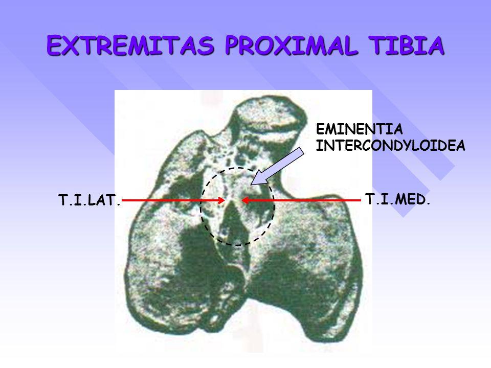 EXTREMITAS PROXIMAL TIBIA EMINENTIA INTERCONDYLOIDEA T.I.LAT. T.I.MED.