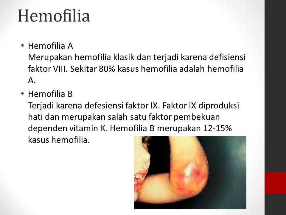 Hemofilia Hemofilia A Merupakan hemofilia klasik dan terjadi karena defisiensi faktor VIII. Sekitar 80% kasus hemofilia adalah hemofilia A. Hemofilia
