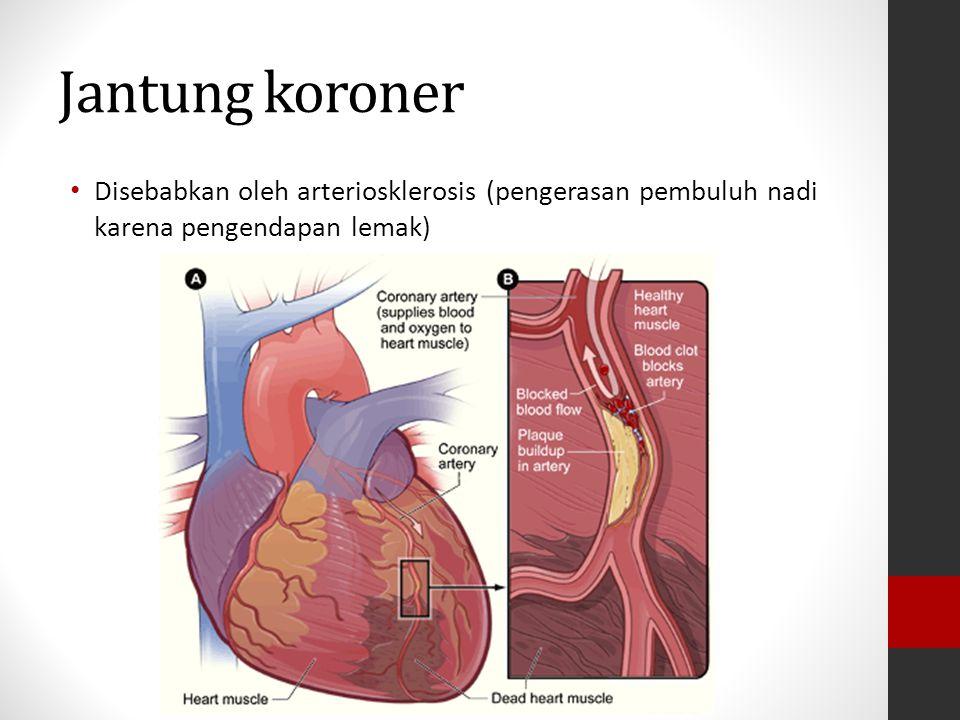 Jantung koroner Disebabkan oleh arteriosklerosis (pengerasan pembuluh nadi karena pengendapan lemak)