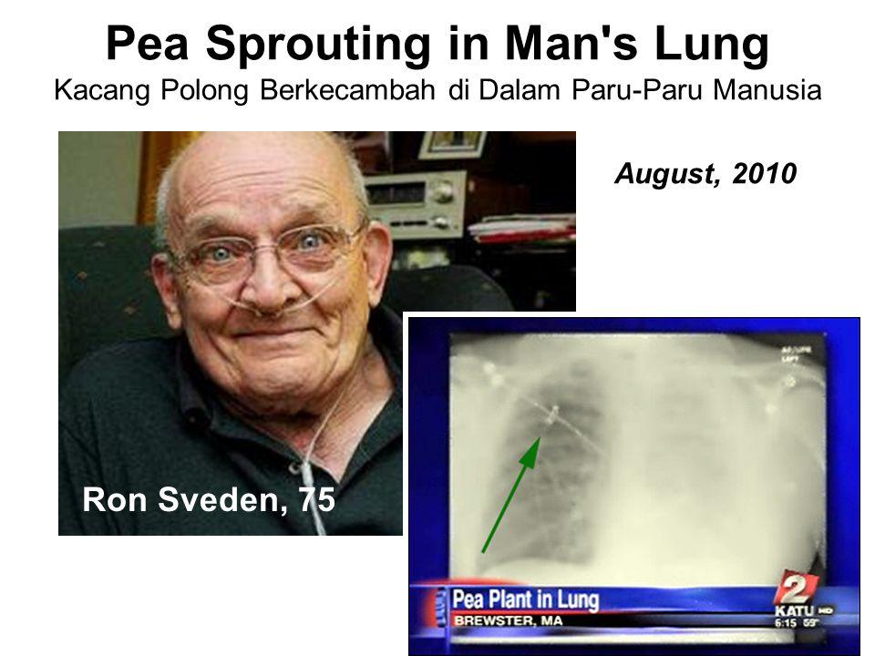 Pea Sprouting in Man s Lung Kacang Polong Berkecambah di Dalam Paru-Paru Manusia Ron Sveden, 75 August, 2010
