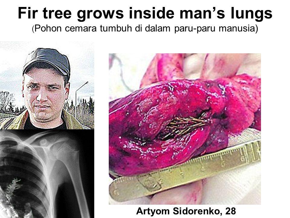 Fir tree grows inside man's lungs ( Pohon cemara tumbuh di dalam paru-paru manusia) Artyom Sidorenko, 28