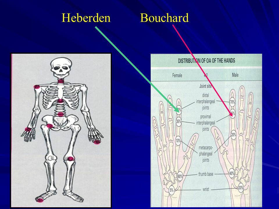 Heberden Bouchard