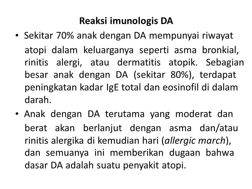 Reaksi imunologis DA Sekitar 70% anak dengan DA mempunyai riwayat atopi dalam keluarganya seperti asma bronkial, rinitis alergi, atau dermatitis atopi