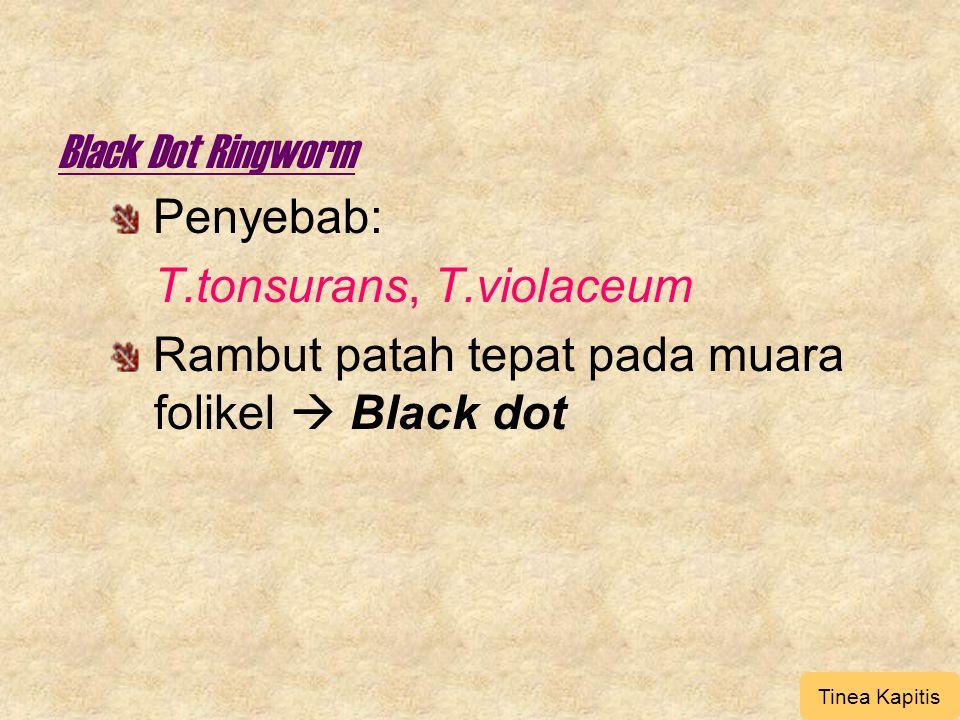 Black Dot Ringworm Penyebab: T.tonsurans, T.violaceum Rambut patah tepat pada muara folikel  Black dot Tinea Kapitis