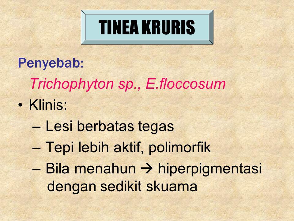 TINEA KRURIS Penyebab: Trichophyton sp., E.floccosum Klinis: – Lesi berbatas tegas – Tepi lebih aktif, polimorfik – Bila menahun  hiperpigmentasi den