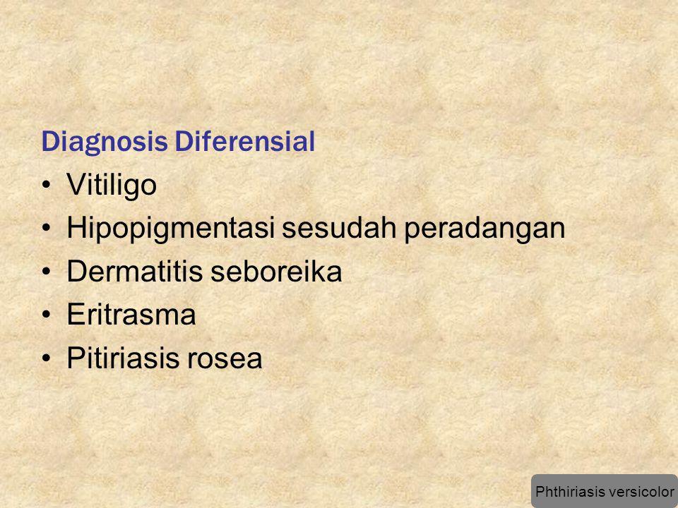 Diagnosis Diferensial Vitiligo Hipopigmentasi sesudah peradangan Dermatitis seboreika Eritrasma Pitiriasis rosea Phthiriasis versicolor