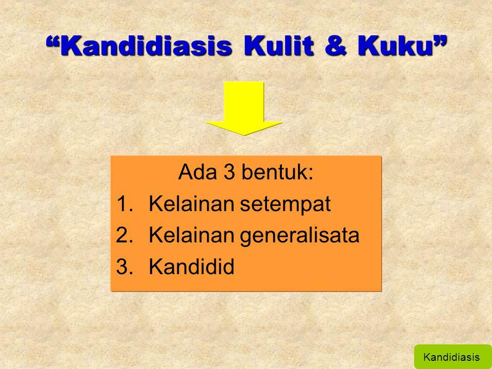 """""""Kandidiasis Kulit & Kuku"""" Ada 3 bentuk: 1.Kelainan setempat 2.Kelainan generalisata 3.Kandidid Kandidiasis"""