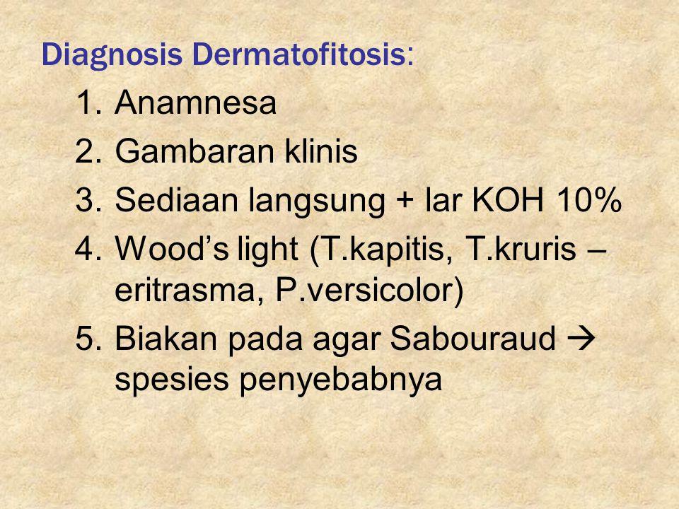 Diagnosis Dermatofitosis : 1.Anamnesa 2.Gambaran klinis 3.Sediaan langsung + lar KOH 10% 4.Wood's light (T.kapitis, T.kruris – eritrasma, P.versicolor