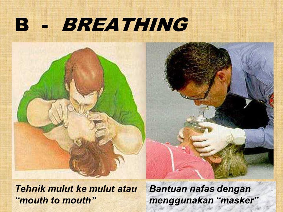 B - BREATHING Tehnik mulut ke mulut atau mouth to mouth Bantuan nafas dengan menggunakan masker