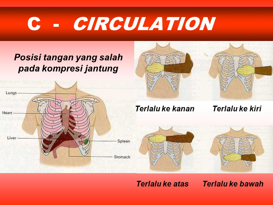 C - CIRCULATION Terlalu ke kananTerlalu ke kiri Terlalu ke bawahTerlalu ke atas Posisi tangan yang salah pada kompresi jantung