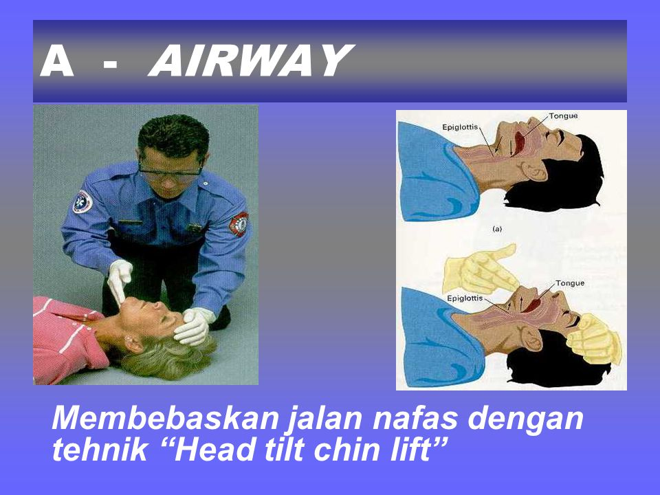 A - AIRWAY Membebaskan jalan nafas dengan tehnik Head tilt chin lift