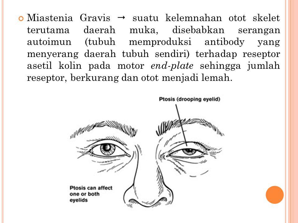 Miastenia Gravis  suatu kelemnahan otot skelet terutama daerah muka, disebabkan serangan autoimun (tubuh memproduksi antibody yang menyerang daerah t