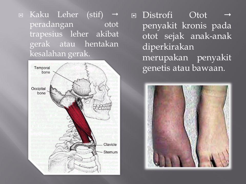  Kaku Leher (stif)  peradangan otot trapesius leher akibat gerak atau hentakan kesalahan gerak.  Distrofi Otot  penyakit kronis pada otot sejak an
