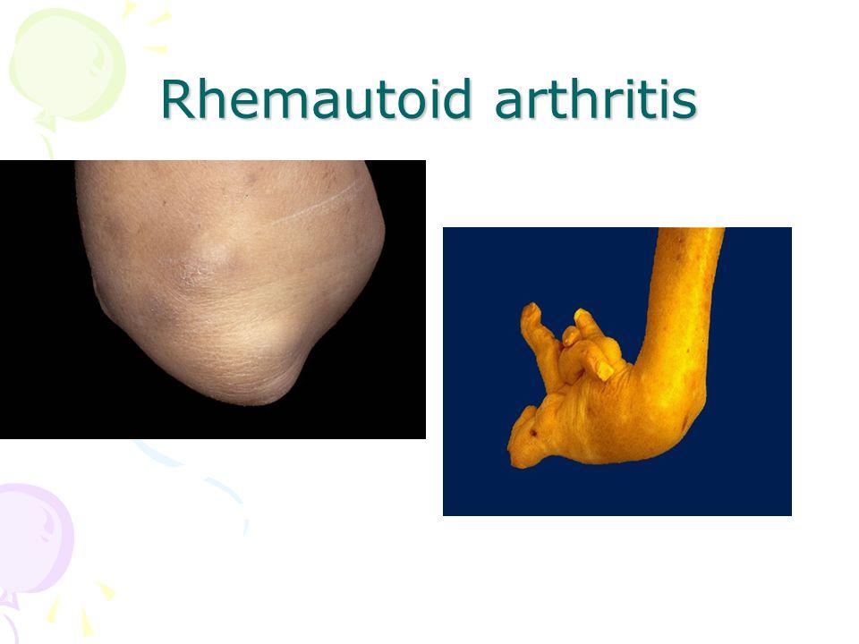 Rhemautoid arthritis