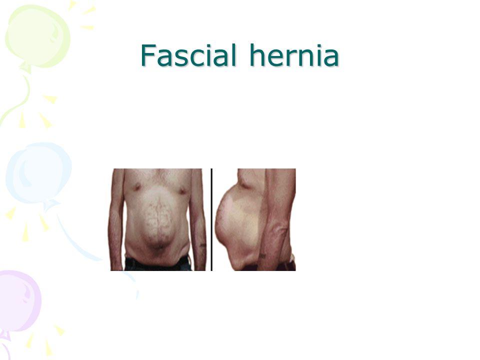 Fascial hernia