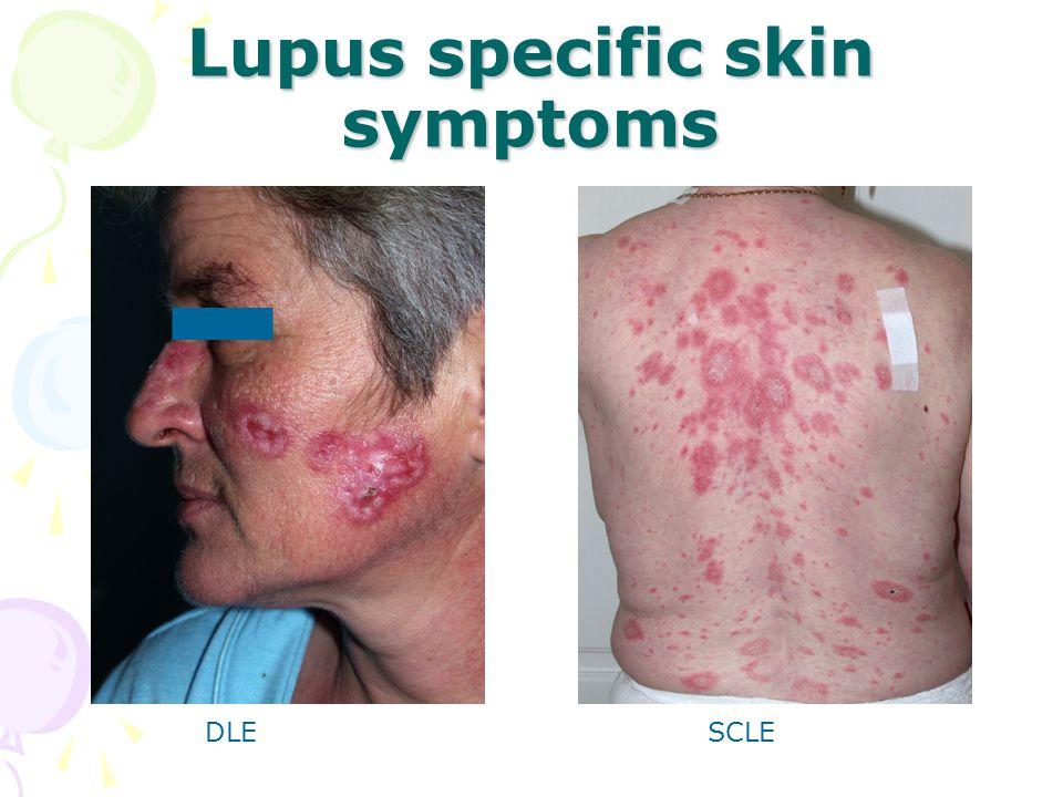 Lupus specific skin symptoms DLESCLE