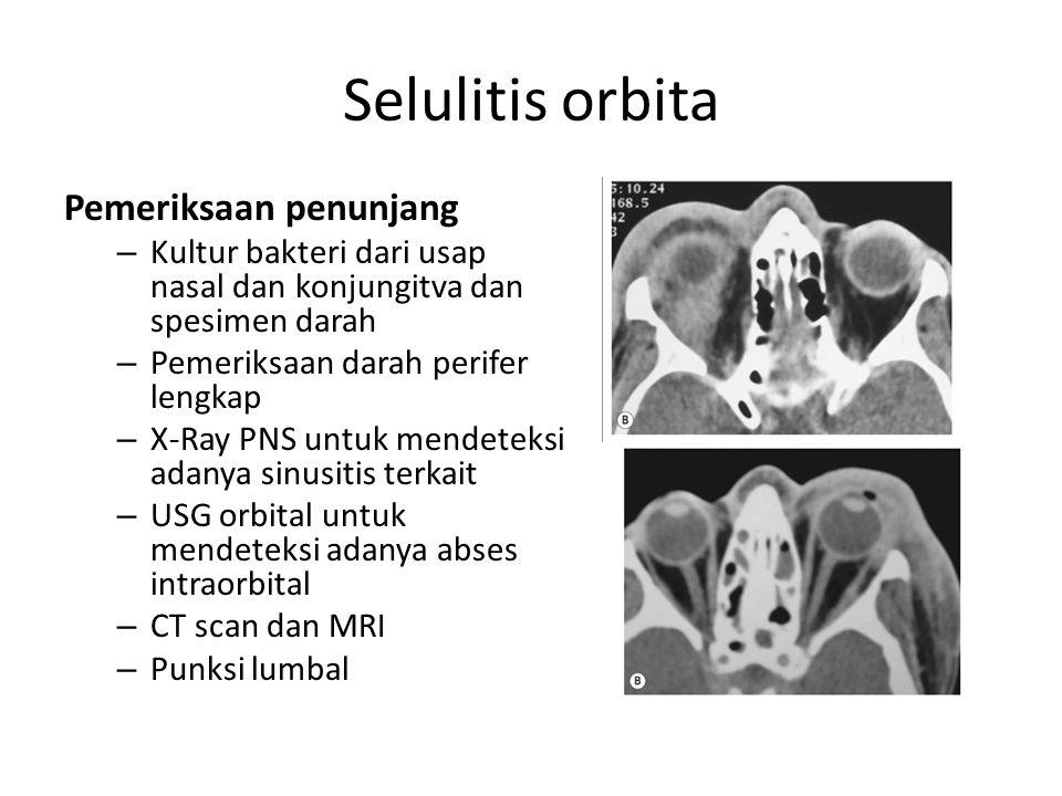 Selulitis orbita Pemeriksaan penunjang – Kultur bakteri dari usap nasal dan konjungitva dan spesimen darah – Pemeriksaan darah perifer lengkap – X-Ray