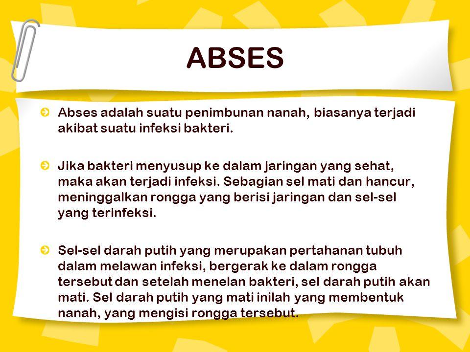 Abses adalah suatu penimbunan nanah, biasanya terjadi akibat suatu infeksi bakteri. Jika bakteri menyusup ke dalam jaringan yang sehat, maka akan terj