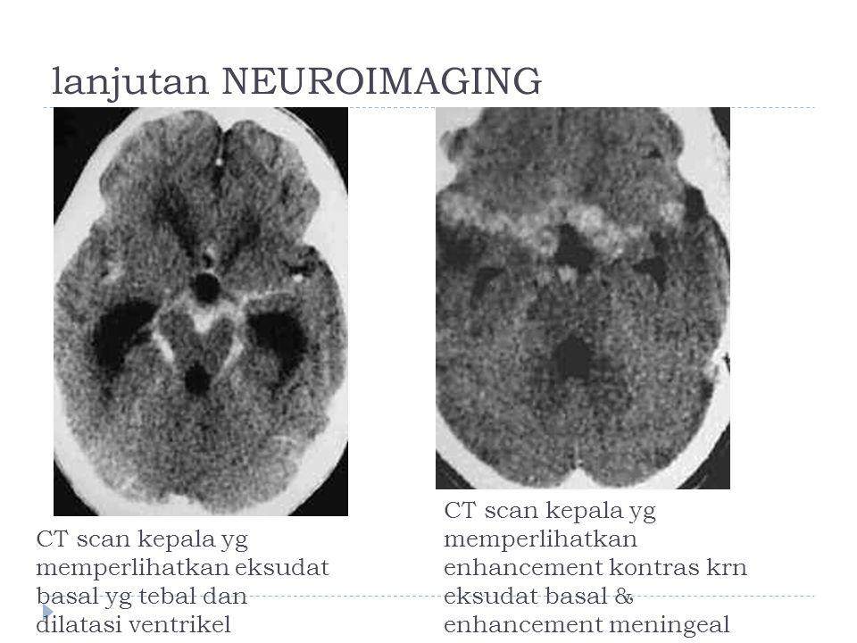 lanjutan NEUROIMAGING CT scan kepala yg memperlihatkan eksudat basal yg tebal dan dilatasi ventrikel CT scan kepala yg memperlihatkan enhancement kont