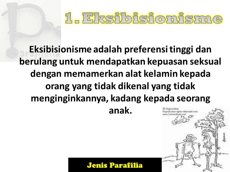 Jenis Parafilia Fetishisme mencakup ketergantungan pada benda-benda mati untuk menimbulakn gairah seksual.