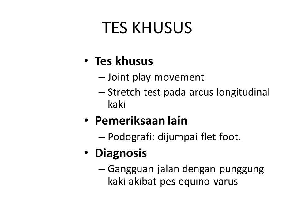 TES KHUSUS Tes khusus – Joint play movement – Stretch test pada arcus longitudinal kaki Pemeriksaan lain – Podografi: dijumpai flet foot. Diagnosis –