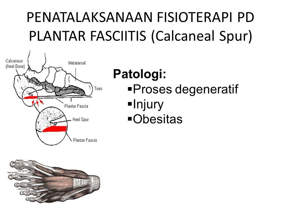 PENATALAKSANAAN FISIOTERAPI PD PLANTAR FASCIITIS (Calcaneal Spur) Patologi:  Proses degeneratif  Injury  Obesitas