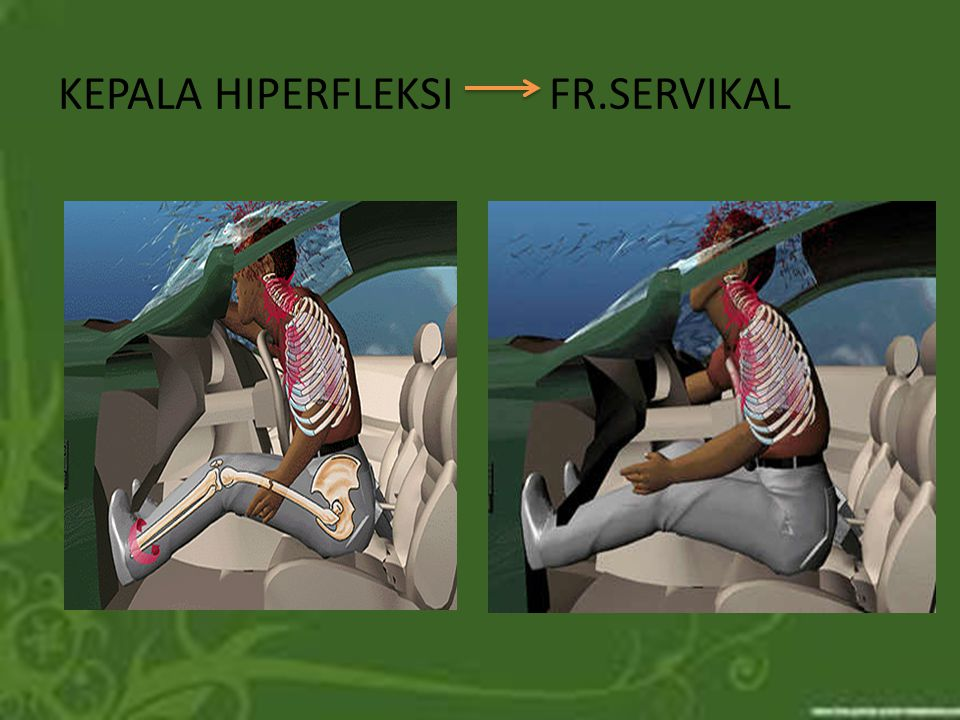 KEPALA HIPERFLEKSI FR.SERVIKAL