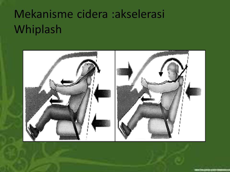 Mekanisme cidera :akselerasi Whiplash