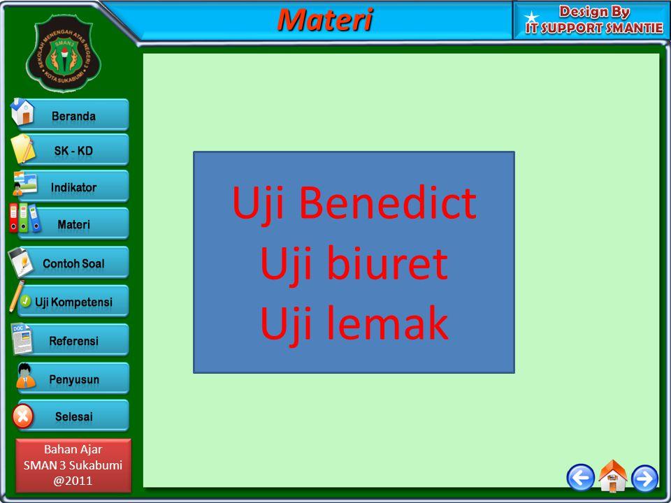 Bahan Ajar SMAN 3 Sukabumi @2011 Bahan Ajar SMAN 3 Sukabumi @2011MateriPancreas Retroperitoneal Endocrine or exocrine gland.