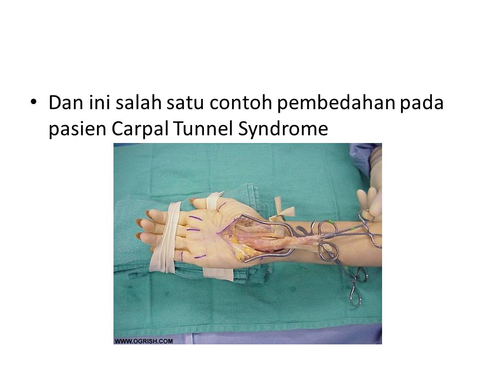 Dan ini salah satu contoh pembedahan pada pasien Carpal Tunnel Syndrome