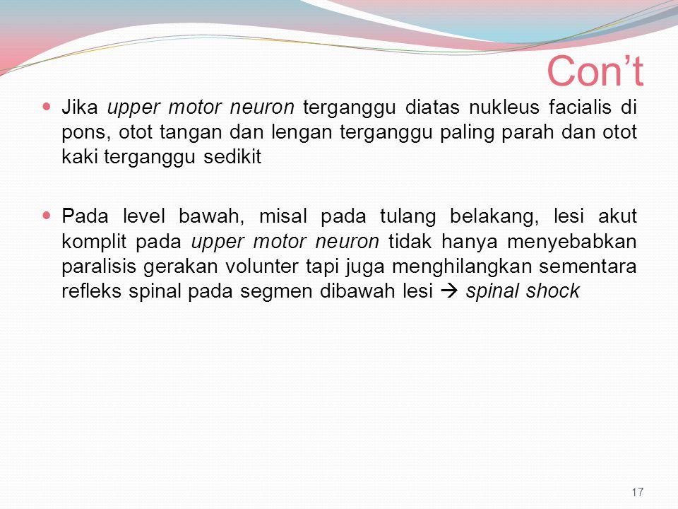 Con't Jika upper motor neuron terganggu diatas nukleus facialis di pons, otot tangan dan lengan terganggu paling parah dan otot kaki terganggu sedikit