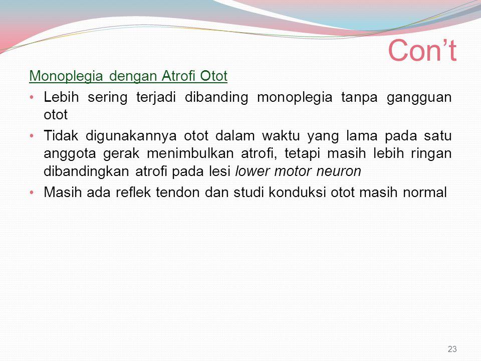 Con't Monoplegia dengan Atrofi Otot Lebih sering terjadi dibanding monoplegia tanpa gangguan otot Tidak digunakannya otot dalam waktu yang lama pada s