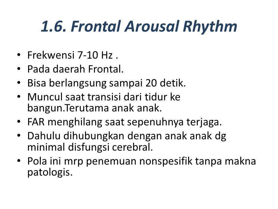 1.6. Frontal Arousal Rhythm Frekwensi 7-10 Hz. Pada daerah Frontal. Bisa berlangsung sampai 20 detik. Muncul saat transisi dari tidur ke bangun.Teruta
