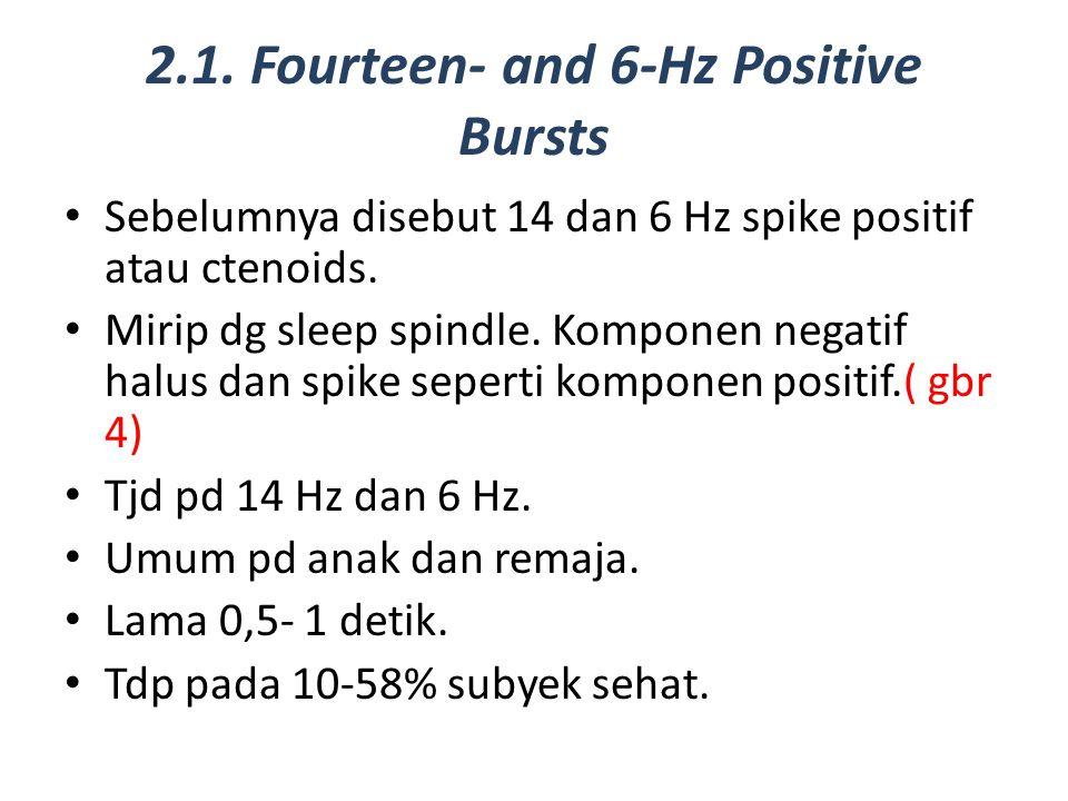 2.1. Fourteen- and 6-Hz Positive Bursts Sebelumnya disebut 14 dan 6 Hz spike positif atau ctenoids. Mirip dg sleep spindle. Komponen negatif halus dan