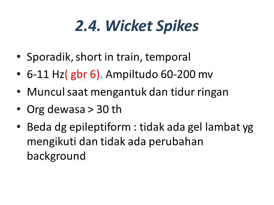 2.4. Wicket Spikes Sporadik, short in train, temporal 6-11 Hz( gbr 6). Ampiltudo 60-200 mv Muncul saat mengantuk dan tidur ringan Org dewasa > 30 th B