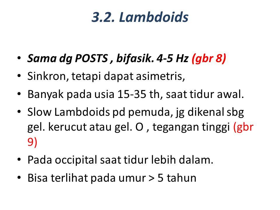 3.2. Lambdoids Sama dg POSTS, bifasik. 4-5 Hz (gbr 8) Sinkron, tetapi dapat asimetris, Banyak pada usia 15-35 th, saat tidur awal. Slow Lambdoids pd p