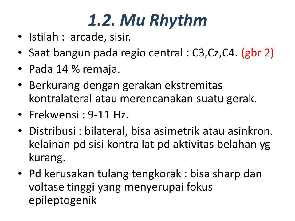 1.2. Mu Rhythm Istilah : arcade, sisir. Saat bangun pada regio central : C3,Cz,C4. (gbr 2) Pada 14 % remaja. Berkurang dengan gerakan ekstremitas kont