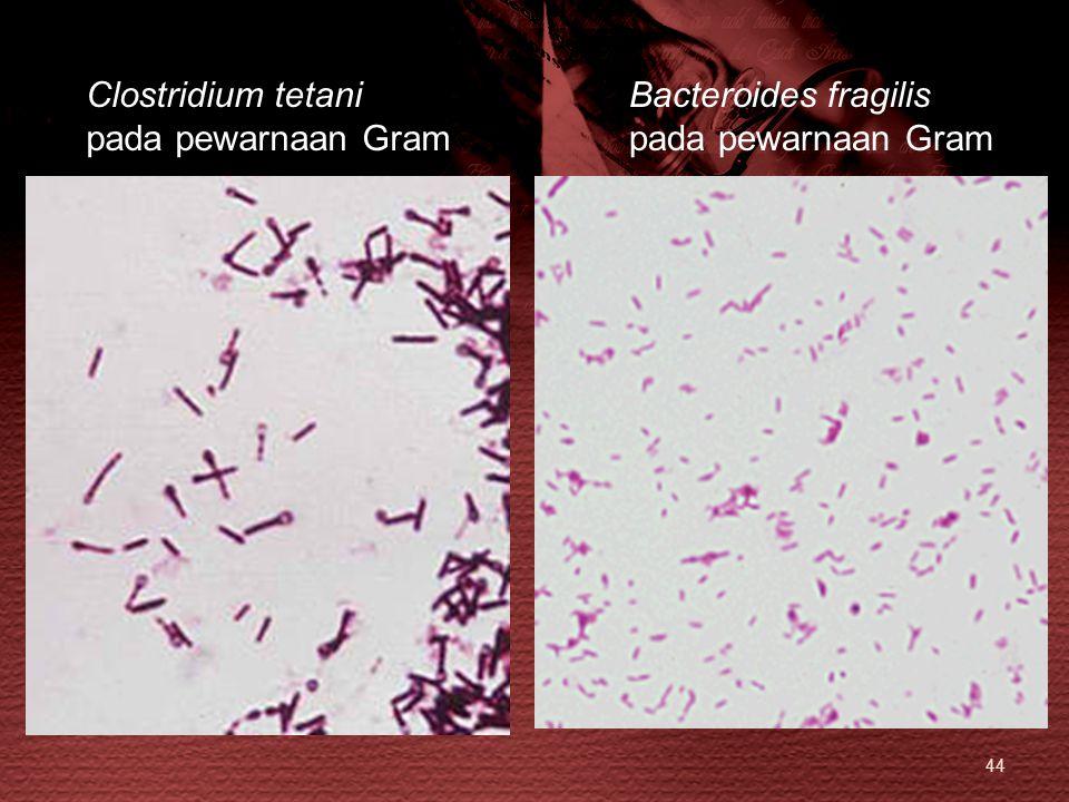 44 Bacteroides fragilis pada pewarnaan Gram Clostridium tetani pada pewarnaan Gram