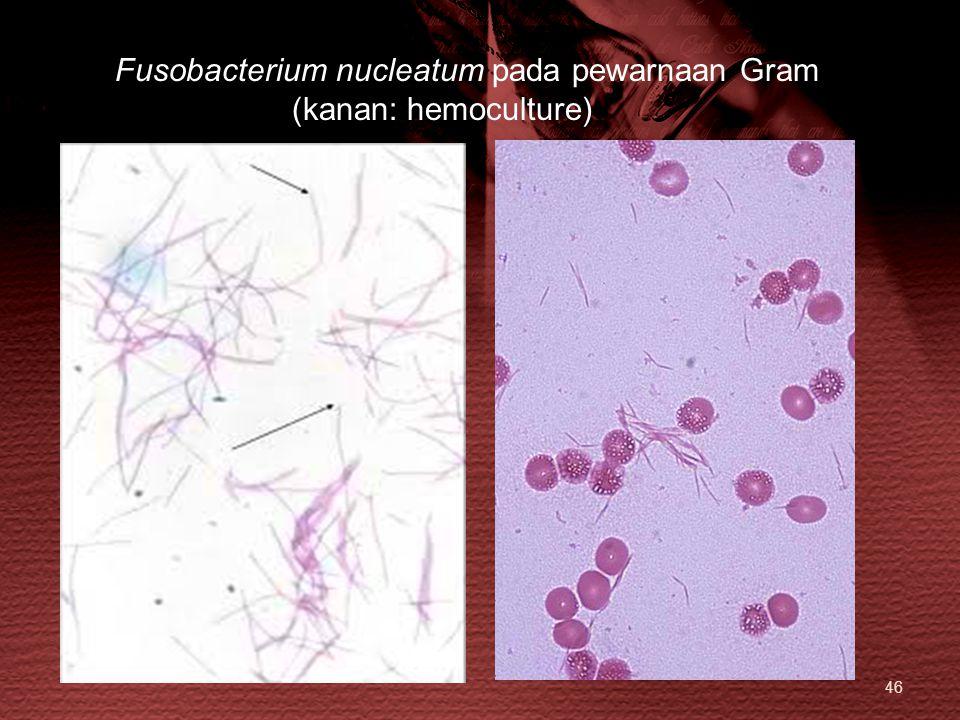 46 Fusobacterium nucleatum pada pewarnaan Gram (kanan: hemoculture)