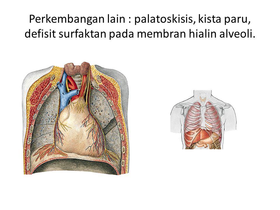 Perkembangan lain : palatoskisis, kista paru, defisit surfaktan pada membran hialin alveoli.