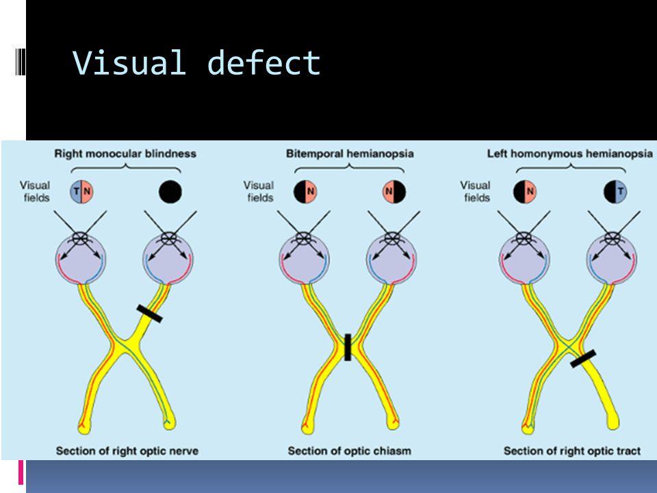 Visual defect