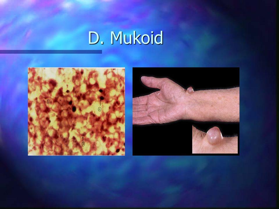 n Degenerasi Amiloid –Timbunan bahan berupa lilin terdiri dari protein abnormal di jaringan ekstrasel, terutama : sekitar jaringan pennyokong pembuluh darah, sekitar membran basalis –Sifat amiloid : tidak gampang rusak, tidak gampang bergerak timbunan itu mengeras –Ada dua tipe : primer (tdk diketahui sebabnya), sekunder (penyakit kronik spt TBC, sifilis, reumatik)