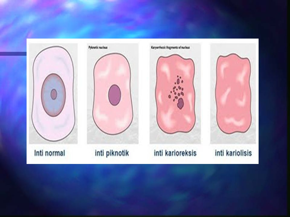 Tanda Utama Nekrosis n Perubahan pada inti sel di tandai dgn : –Hilangnya gambaran kromatin –Inti menjadi keriput, tidak vesikuler lagi –Inti tampak lebih padat, warnanya gelap hitam (pyknosis) –Inti terbagi atas fragmen-fragmen, robek (karyorheksys) –Inti pucat, tidak nyata, hancur (kariolysis) Akhirnya seluruh jaringan menjadi suatu massa amorf, granula tanpa inti atau meninggalkan bayangan kerangka sel dan akhirnya menghilang sama sekali