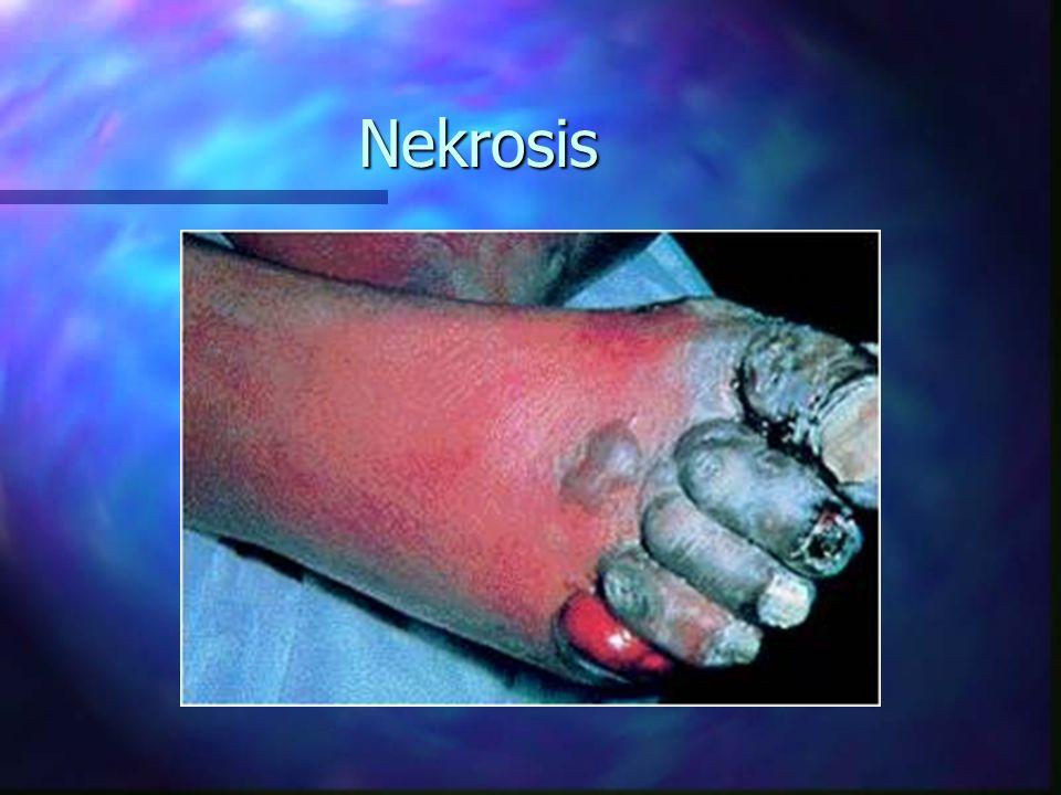 Penyebab Nekrosis n Iskhemik n Agen biologi n Agen kimia n Agen fisik n Kerentanan (hyipersensitivity)