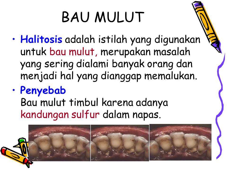 BAU MULUT Halitosis adalah istilah yang digunakan untuk bau mulut, merupakan masalah yang sering dialami banyak orang dan menjadi hal yang dianggap me
