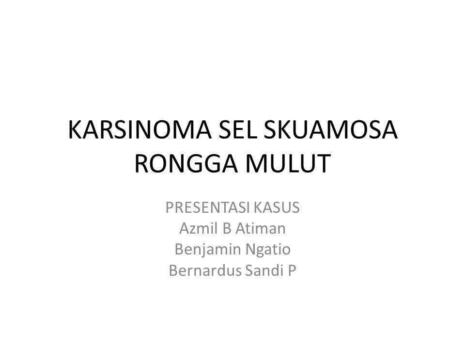 KARSINOMA SEL SKUAMOSA RONGGA MULUT PRESENTASI KASUS Azmil B Atiman Benjamin Ngatio Bernardus Sandi P