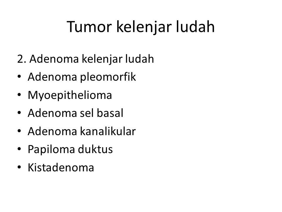 Tumor kelenjar ludah 2.